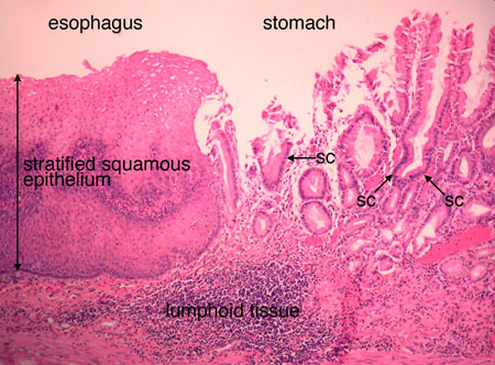 Esophagus Stomach Junction Histology Labeled | www ...
