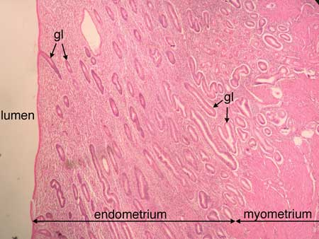 endometrium histology - photo #45